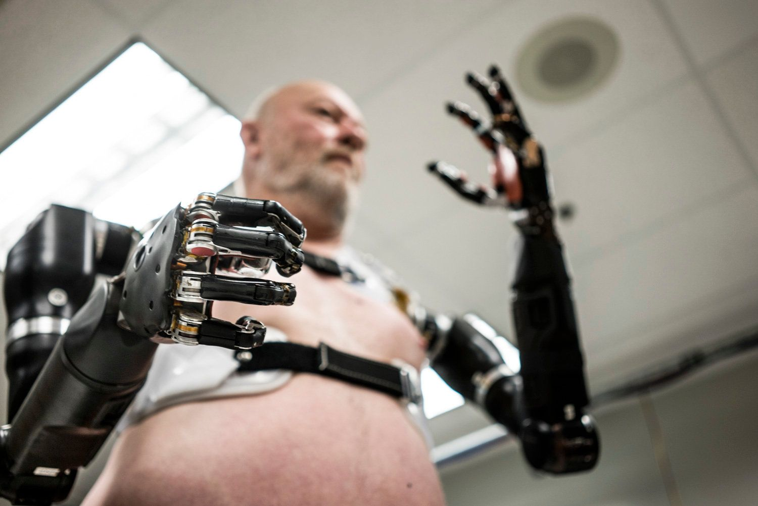 Mind Controlled Prosthetics