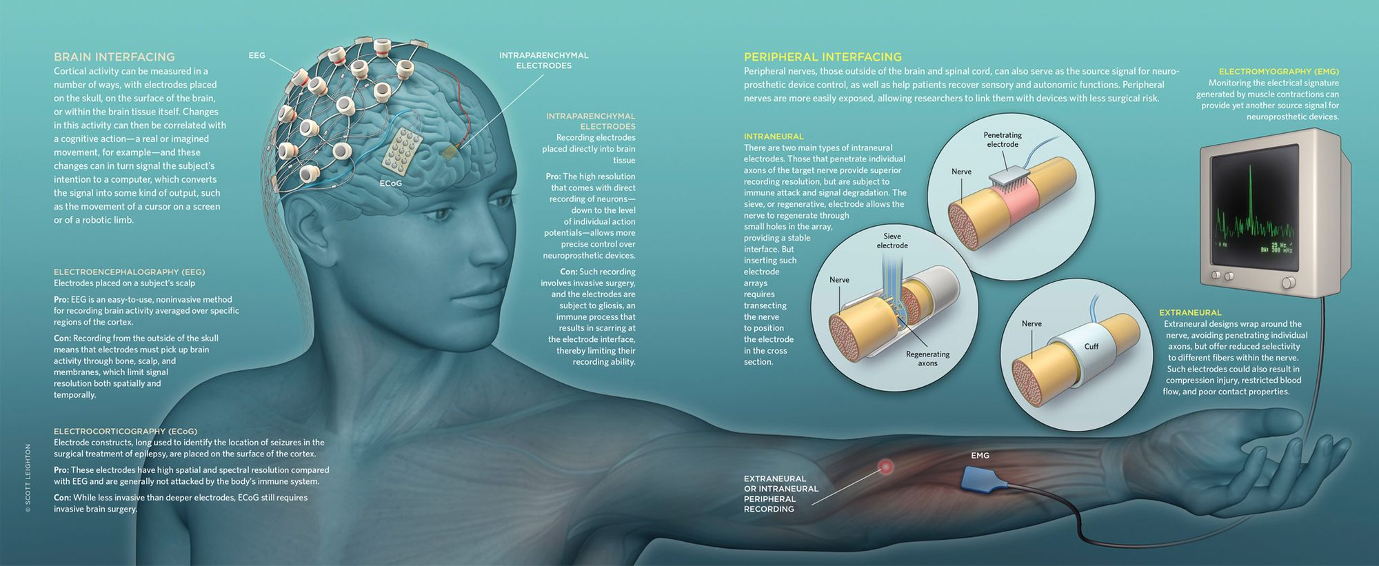 Neuroprosthetics - Intelligent Spinal Interface
