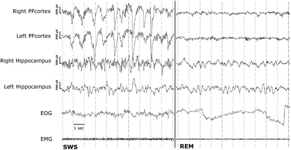 EEG: Early Indicator Of Autism